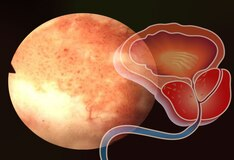 What Is a Prostate Pleasure Disease (PPD)?