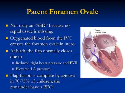 What Is the Patent Foramen Ovale?