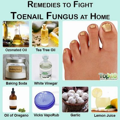 Toenail Fungus Home Remedies - Can You Really Do It?